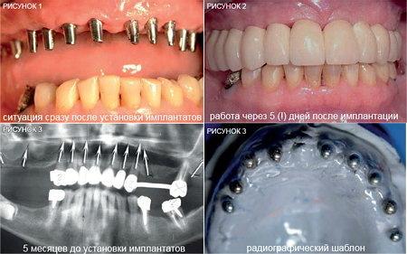 Болит зубной имплант