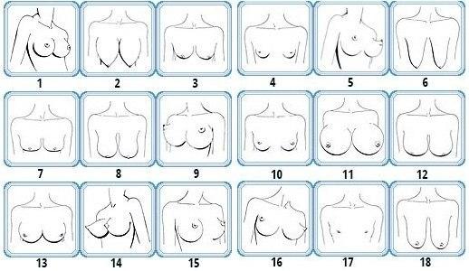 типы женских грудей фото